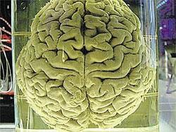 Секретные эксперименты ученых с мозгом выдающихся людей